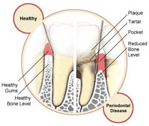 periodontal_disease-2141